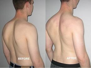 Упражнение для осанки спины с палкой